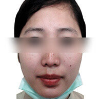 Kaya's Pigmentation Treatment - After Insta Clarity Laser Action