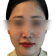 Kaya's Pigmentation Treatment - Before Insta Clarity Laser Action